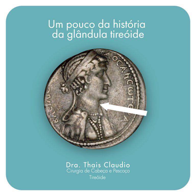 cleopatra-bocio-glandula-tireoide